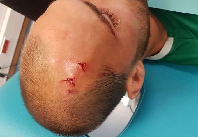 Фанати «Спортинга» увірвалися набазу клубу і побили футболістів