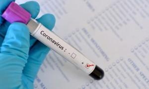 У збірній Туреччини зафіксовано два випадки коронавірусу
