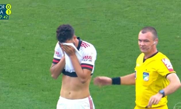 Гравець Фламенго отримав жахливу травму