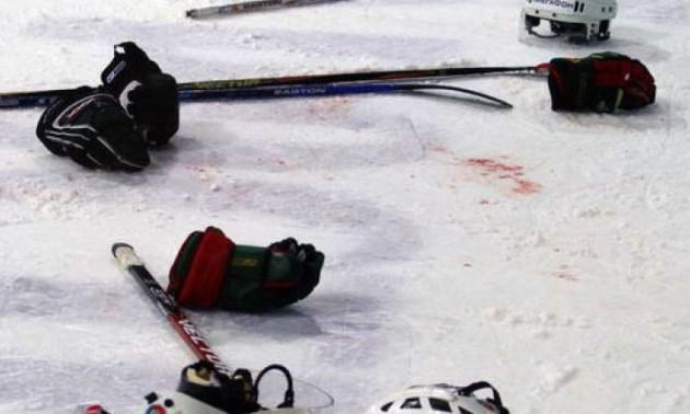 Батькові російського хокеїста вистрелили в голову під час матчу сина. ВІДЕО